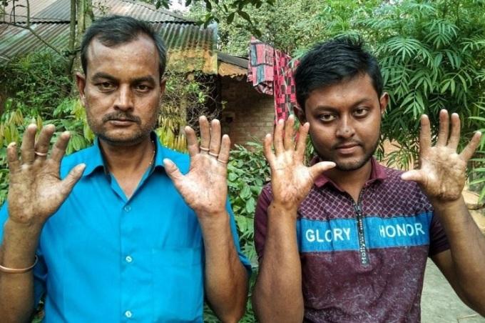 Những người đàn ông trong gia đình Sarker không có dấu vân tay. Ảnh: Pradip Kumar Nath.