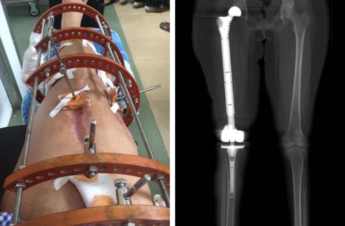 Chân Linh Nhi trong ca phẫu thuật lồng nối xương (trái) và thay xương đùi nhân tạo (phải). Ảnh: Gia đình cung cấp.